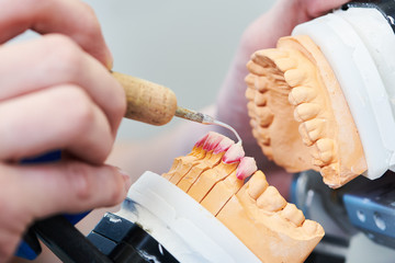 dental technician or prosthesis work. prosthetic dentistry process