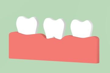 tooth periodontitis or gingivitis, gum disease - dental cartoon 3d render cute character for design