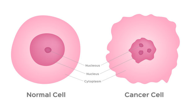 cancer cell stage and development vector
