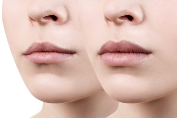 Lips of young woman before and after augmentation.