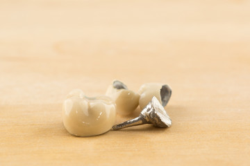 modern dental metal-ceramic crowns