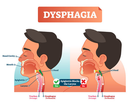 Vector illustration about dysphagia and compered it in scheme. Close-up human with nasal cavity, mouth, tongue, epiglottis, larynx, food, trachea and esophagus.