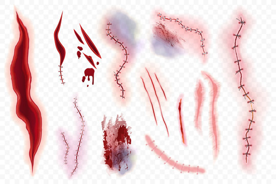 Realistic vector surgical stitches, scars, bruise and slaughter set isolated on the alpha transperant background. Bloody scar.