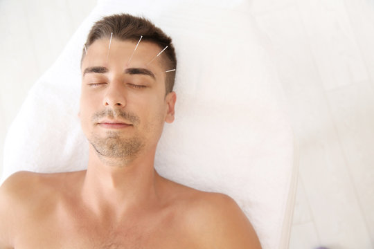 Young man undergoing acupuncture treatment in salon