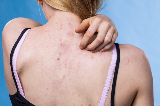 Woman with skin problem acne on back