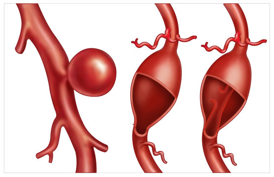 In this illustration we can see the examples of types of aneurysms. An aneurysm is a localized dilation in a blood vessel (artery or vein) caused by a degeneration or weakening of the vascular wall.