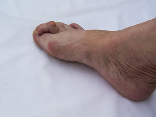 Bare foots which have Hallux Valgus (bunion) problem.