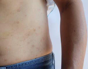 Atopic dermatitis on skin body on white background