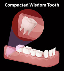 Compacted Wisdom Tooth Diagram