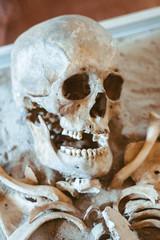 the human skull lies