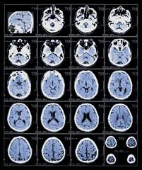 xray film of the brain