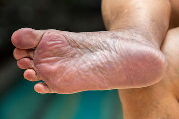 Senior woman's sole of foot, swimming pool background