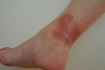 erythema on the leg