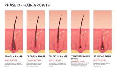 Medical infographic illustrations of hair growth cycle. Vector pictures of human biology
