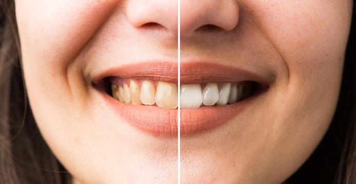 Woman smile before and after bleaching