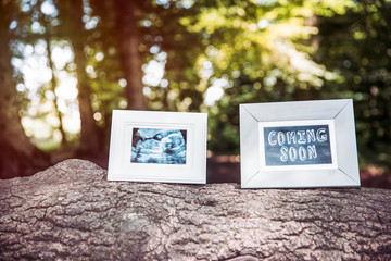 Baby Ultrasound and Coming Soon Photo Frames on Tree Trunk in Forest.
