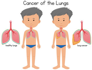 Cancer of the lungs