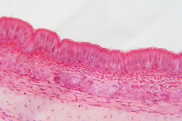 Pseudostratified epithelium is a type of epithelium that