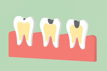 step of decay tooth - dental cartoon 3d render flat style