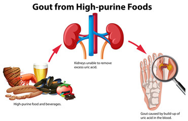 Gout from High-purine Foods