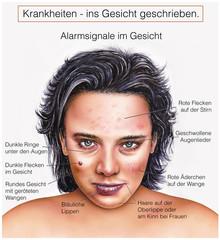 Alarm-Signale im Gesicht-Krankheiten