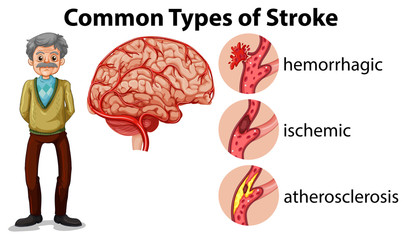 And Old Man and Types of Stroke