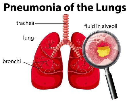Pneumonia of the Lungs Diagram