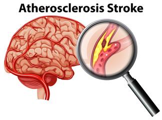 Atherosclerosis Stroke on White Background
