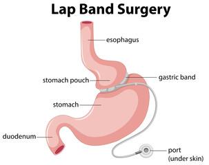 Lap Band Surgery Diagram