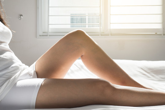 Varicose veins on the woman legs or foot,Body and health care concept,Selective focus
