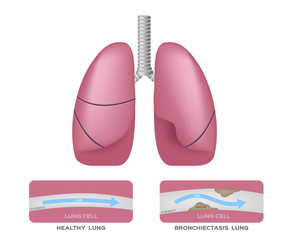 Bronchiectasis in lung vector infographic