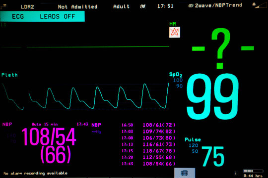 Normal heart function on pulse oximeter pleth graph bar