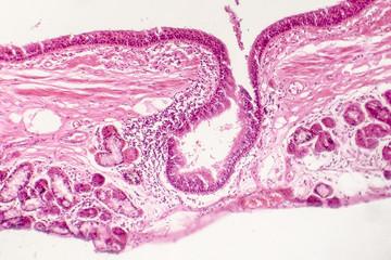Squamous metaplasia of bronchial epithelium, light micrograph, photo under microscope