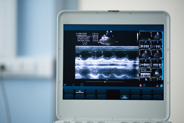 Photo screen ultrasound scanner with a picture of the heart scan.