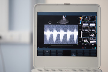 Photo of the ultrasound scanner screen showing the measurement of the pressure gradient between the right ventricle and the pulmonary artery.