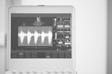 Photo of the ultrasound scanner screen showing the measurement of the pressure gradient between the right ventricle and the pulmonary artery. Black and white photo.