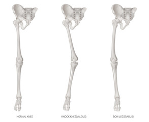 Types disease of lower half limbs or leg bone problem- Normal- Knock knee and Bowlegs or Valgus and Varus knee- 3D medical illustration- human anatomy and educational concept-Isolated white background