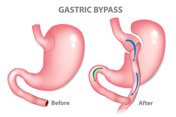 Gastric bypass surgery - RNY (Roux-en-Y ). MINI-GASTRIC BYPASS