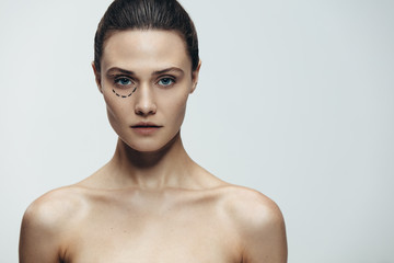 Woman before cosmetic facial surgery