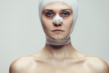 Woman after facial cosmetic surgery