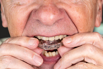 Senior man putting a night guard onto crooked teeth
