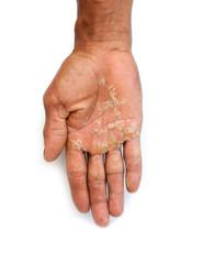 Poor hands with hard.