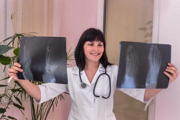 Smiling doctor with patient's x-ray in hands