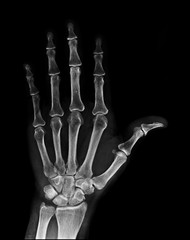 X-ray image of normal Hand , xray medical background.