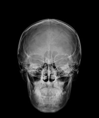 head skull x-ray front view