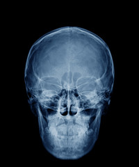head skull x-ray front view in blue tone