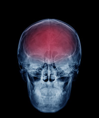 head skull x-ray front view in blue tone and area of brain show in red color