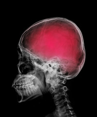head skull x-ray side view and area of brain show in red color