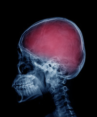 head skull x-ray side view in blue tone and area of brain show in red color
