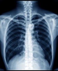Chest x-ray of normal healthy man show lung, heart, spine, clavicle, diaphragm